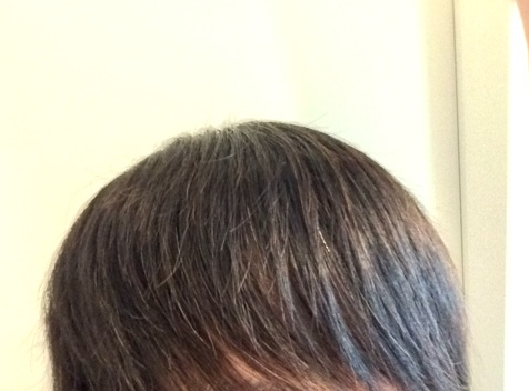 自毛植毛手術から2年後