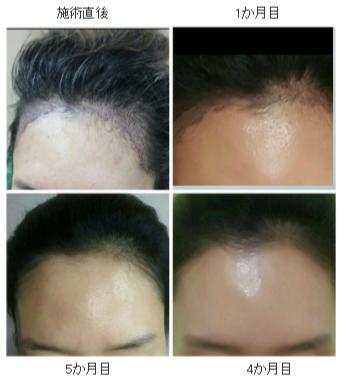 女性の自毛植毛の経過ブログ3経過