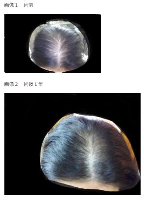女性の自毛植毛の経過ブログ1経過