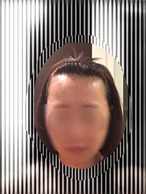 女性の自毛植毛の経過ブログ2術前
