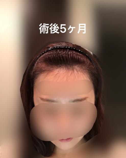 女性の自毛植毛の経過ブログ5ヶ月後