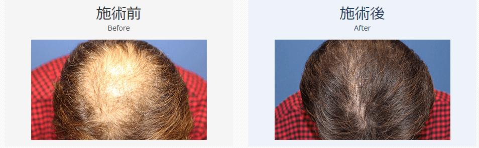 自毛植毛ビフォーアフター、MIRAI法、2800株(前頭部・生え際)