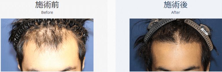 自毛植毛ビフォーアフター、MIRAI法、2200株(生え際)