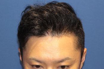 自毛植毛から12か月経過の写真