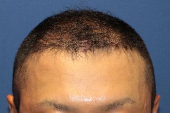 自毛植毛から6か月経過の写真