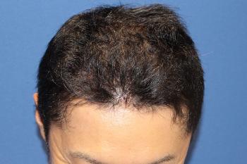 自毛植毛から9か月経過の写真