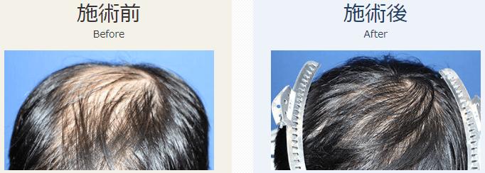 自毛植毛ビフォーアフター、MIRAI法、1800株(頭頂部)