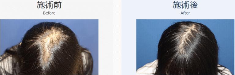 自毛植毛ビフォーアフター、NC-MIRAI法、1500株(頭頂部)