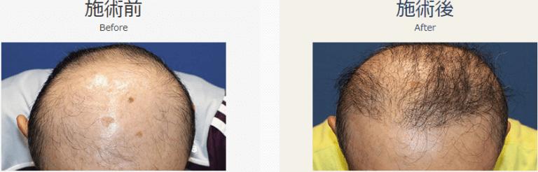 自毛植毛ビフォーアフター、MIRAI法、1500株(頭頂部)
