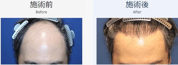 自毛植毛ビフォーアフター、MIRAI法、3000株(頭頂部・前頭部)