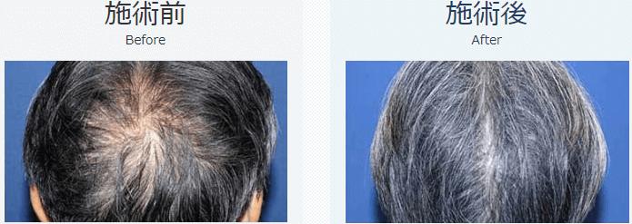 自毛植毛ビフォーアフター、MIRAI法、1500株(頭頂部・前頭部)