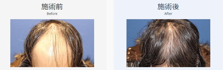 自毛植毛ビフォーアフター、MIRAI法、3000株(頭頂部・前頭部・生え際)