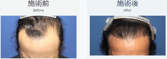 自毛植毛ビフォーアフター、MIRAI法、3700株(頭頂部・前頭部・生え際)
