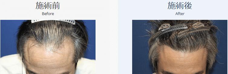 自毛植毛ビフォーアフター、MIRAI法、2500株(頭頂部・前頭部・生え際)