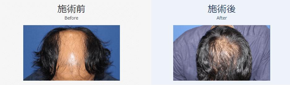 自毛植毛ビフォーアフター、MIRAI法、3000株(頭頂部・生え際)