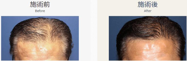 自毛植毛ビフォーアフター、MIRAI法、2000株(頭頂部・生え際)