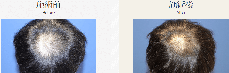 自毛植毛ビフォーアフター、NC-MIRAI法、2000株(頭頂部・生え際)